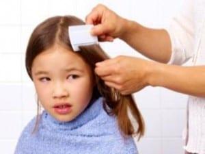 Head lice image 4